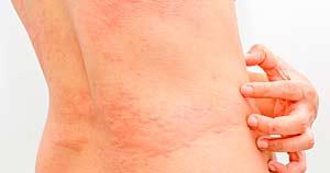 reacciones alergicas en niños durante los campamentos de verano